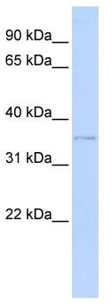 Western blot - HIBADH antibody (ab83780)