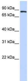 Western blot - Transferrin Receptor 2 antibody (ab83810)