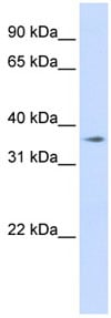 Western blot - TMEM30B antibody (ab83813)