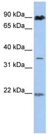 Western blot - C13orf7 antibody (ab83840)