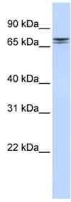 Western blot - NCAPH2 antibody (ab83848)