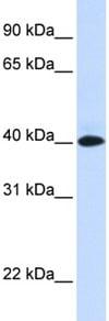 Western blot - VSIG8 antibody (ab83852)