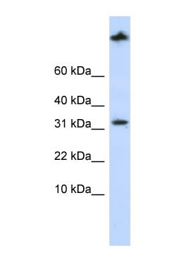 Western blot - Sterol carrier protein 2 antibody (ab83858)