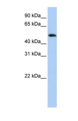 Western blot - FAM175B antibody (ab83860)