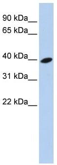 Western blot - ARL13B antibody (ab83879)