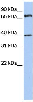 Western blot - MPP5 antibody (ab83891)