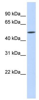 Western blot - IFIT2 antibody (ab83892)