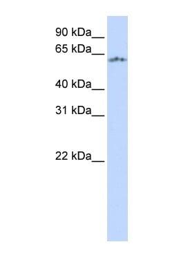 Western blot - PASD5 antibody (ab83965)