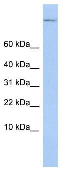 Western blot - TSC22D1 antibody (ab84024)