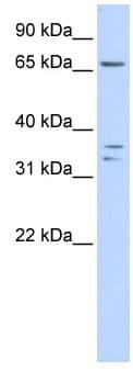 Western blot - IQCE antibody (ab84052)