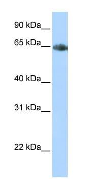 Western blot - Noradrenaline transporter antibody (ab84057)