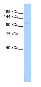 Western blot - zbtb11 antibody (ab84058)