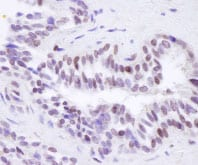 Immunohistochemistry (Formalin/PFA-fixed paraffin-embedded sections) - BRD8 antibody (ab84100)
