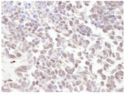 Immunohistochemistry (Formalin/PFA-fixed paraffin-embedded sections) - MTA1 antibody (ab84136)