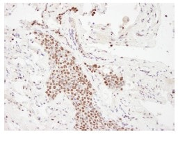 Immunohistochemistry (Formalin/PFA-fixed paraffin-embedded sections) - KAT3B / p300 antibody (ab84138)