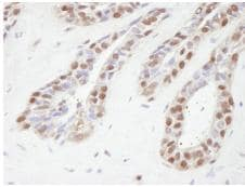 Immunohistochemistry (Formalin/PFA-fixed paraffin-embedded sections) - TBLR1 antibody (ab84141)