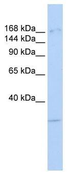 Western blot - KDM6A / UTX antibody (ab84190)