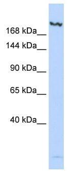 Western blot - KDM6B / JMJD3 antibody (ab84200)