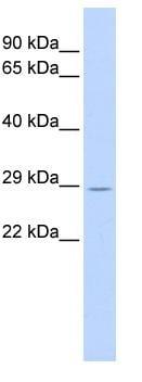 Western blot - MURF2 antibody (ab84284)