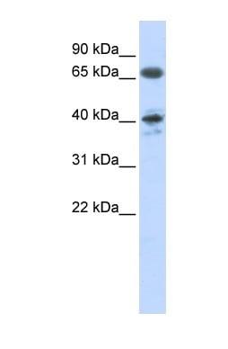 Western blot - Angiotensin II Type 1 Receptor antibody (ab84289)