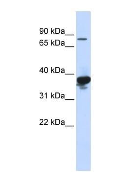 Western blot - LONRF2 antibody (ab84291)