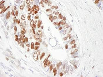 Immunohistochemistry (Formalin/PFA-fixed paraffin-embedded sections) - MCM6 antibody (ab84293)