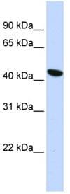 Western blot - TMEM117 antibody (ab84305)
