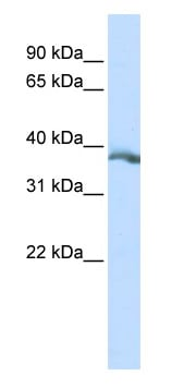 Western blot - EDA antibody (ab84311)