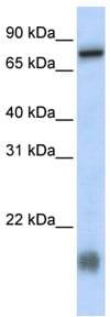 Western blot - C21ORF13 antibody (ab84318)