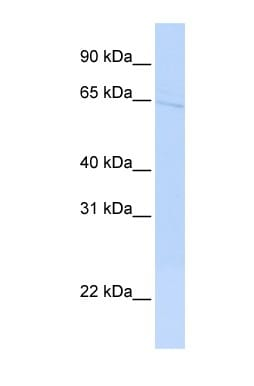 Western blot - hypothetical protein FLJ30058 antibody (ab84330)