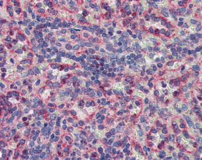 Immunohistochemistry (Formalin/PFA-fixed paraffin-embedded sections) - Anti-MNK2 antibody (ab84345)