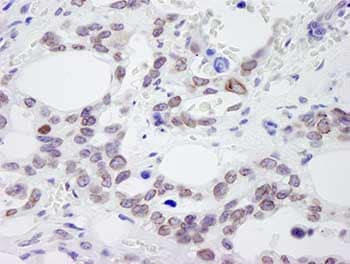 Immunohistochemistry (Formalin/PFA-fixed paraffin-embedded sections) - NUP214 antibody (ab84357)