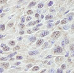 Immunohistochemistry (Formalin/PFA-fixed paraffin-embedded sections) - PRKRIR antibody (ab84360)
