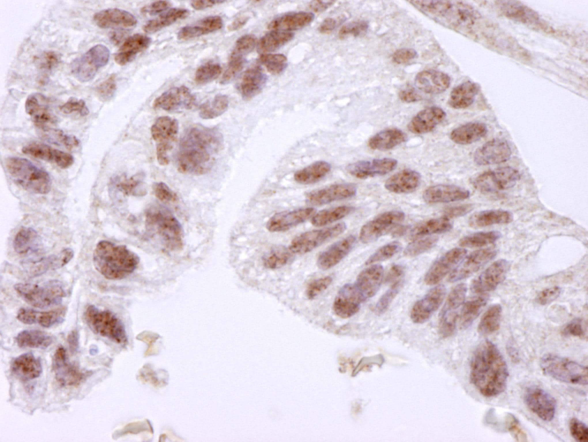 Immunohistochemistry (Formalin/PFA-fixed paraffin-embedded sections) - CTCF antibody (ab84372)
