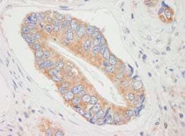 Immunohistochemistry (Formalin/PFA-fixed paraffin-embedded sections) - eIF4ENIF1 antibody (ab84398)