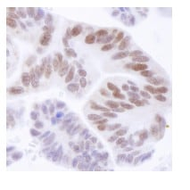 Immunohistochemistry (Formalin/PFA-fixed paraffin-embedded sections) - ASH2L antibody (ab84407)