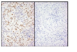 Immunohistochemistry (Formalin/PFA-fixed paraffin-embedded sections) - XRCC1 (phospho S416) antibody (ab84413)