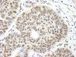 Immunohistochemistry (Formalin/PFA-fixed paraffin-embedded sections) - DIS antibody (ab84425)