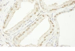 Immunohistochemistry (Formalin/PFA-fixed paraffin-embedded sections) - TIF1 gamma antibody (ab84455)