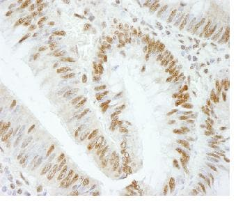 Immunohistochemistry (Formalin/PFA-fixed paraffin-embedded sections) - RBM25 antibody (ab84460)