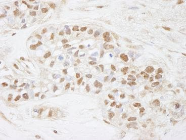 Immunohistochemistry (Formalin/PFA-fixed paraffin-embedded sections) - Cdc25C antibody (ab84485)