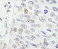Immunohistochemistry (Formalin/PFA-fixed paraffin-embedded sections) - p95 NBS1 antibody (ab84488)