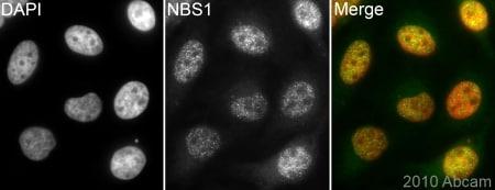 Immunocytochemistry/ Immunofluorescence - p95 NBS1 antibody (ab84488)