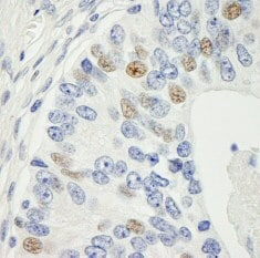 Immunohistochemistry (Formalin/PFA-fixed paraffin-embedded sections) - MAD1 antibody (ab84490)