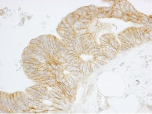 Immunohistochemistry (Formalin/PFA-fixed paraffin-embedded sections) - Alpha Fodrin antibody (ab84492)