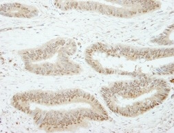 Immunohistochemistry (Formalin/PFA-fixed paraffin-embedded sections) - SSH3 antibody (ab84494)