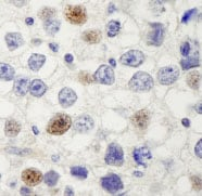 Immunohistochemistry (Formalin/PFA-fixed paraffin-embedded sections) - HURP antibody (ab84509)