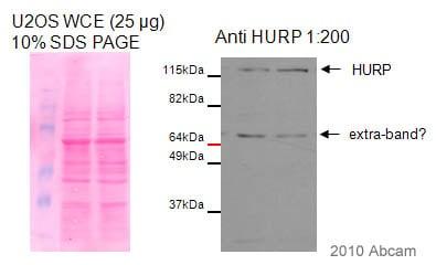 Western blot - HURP antibody (ab84509)