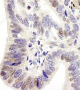 Immunohistochemistry (Formalin/PFA-fixed paraffin-embedded sections) - USP28 antibody (ab84514)