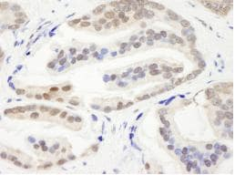 Immunohistochemistry (Formalin/PFA-fixed paraffin-embedded sections) - CHD3 antibody (ab84528)